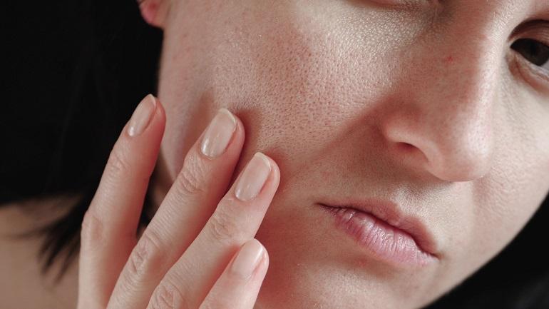 Komputerowe badanie skóry a pory