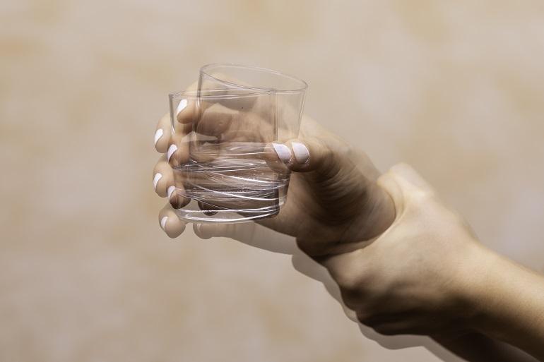 Dyskinezy - drżenie dłoni
