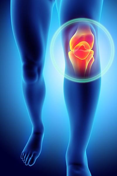 Co to jest zapalenie kaletki maziowej w kolanie